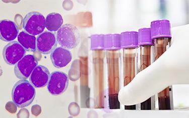 Molecular Panel Testing Service Pasadena